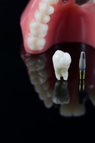Dental Implants Arlington Texas Dentist Tooth Replacement Teeth Implant Procedure