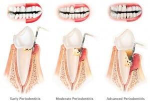 periodontital-therapy