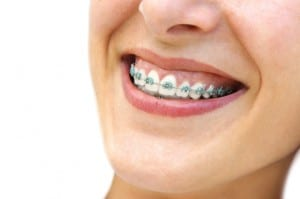 Additional Benefits of braces beyond just a pretty smile. Braces can lead to a much more healthy mouth.